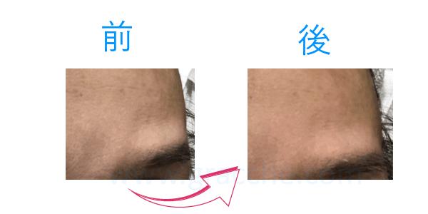 リフトマキシマイザーの口コミレビュー額左部分比較