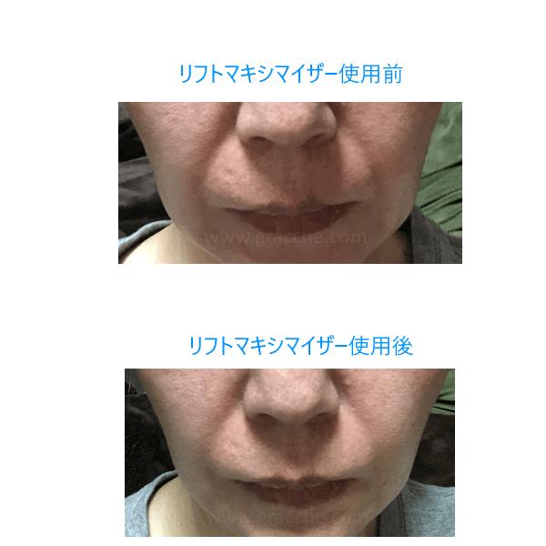 リフトマキシマイザー使用前と使用後の比較